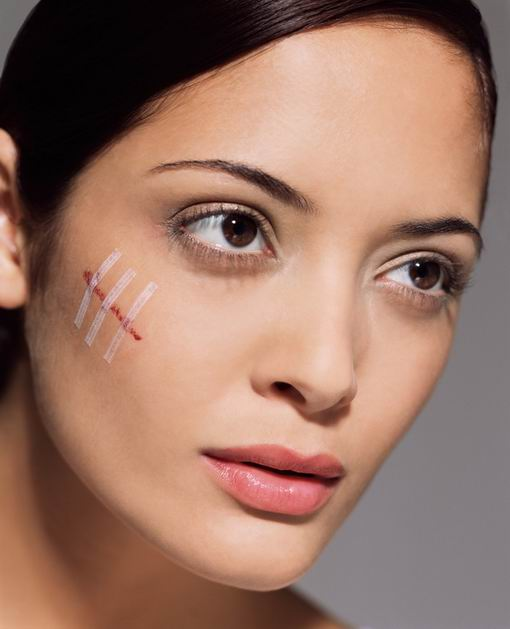 Best Acne Scar Treatment for Scars on Face - Popteen Magazine - Scars Treatment